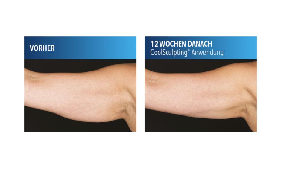 CoolSculpting®-Anwendung am Oberarm